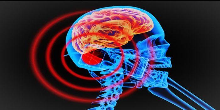 Bluetooth causa radiación