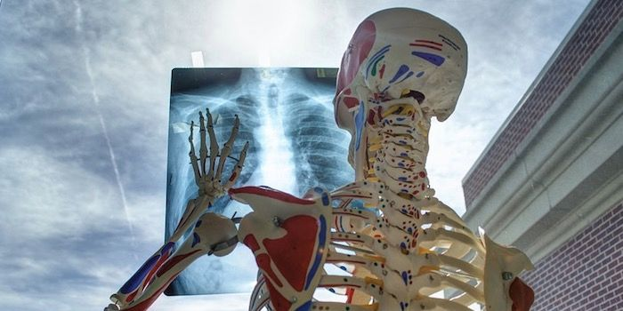 La mejor aplicacion de rayos X para Android
